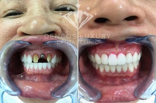 anh-truoc-sau-trong-rang-implant-dencos-luxury