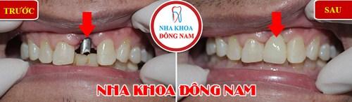 anh-truoc-sau-trong-rang-implant-dong-nam