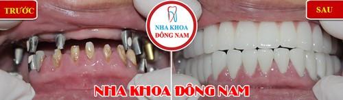 anh-truoc-sau-trong-rang-implant-dong-namb