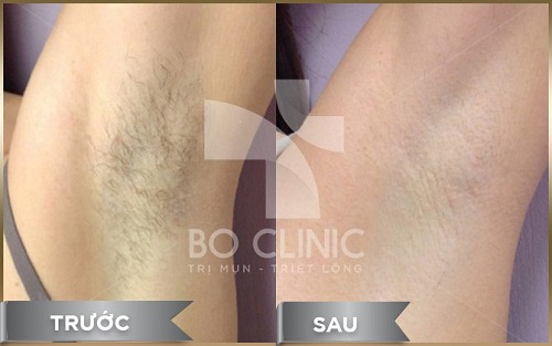 bo-clinic-triet-long-nach